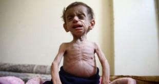 syria-suffering